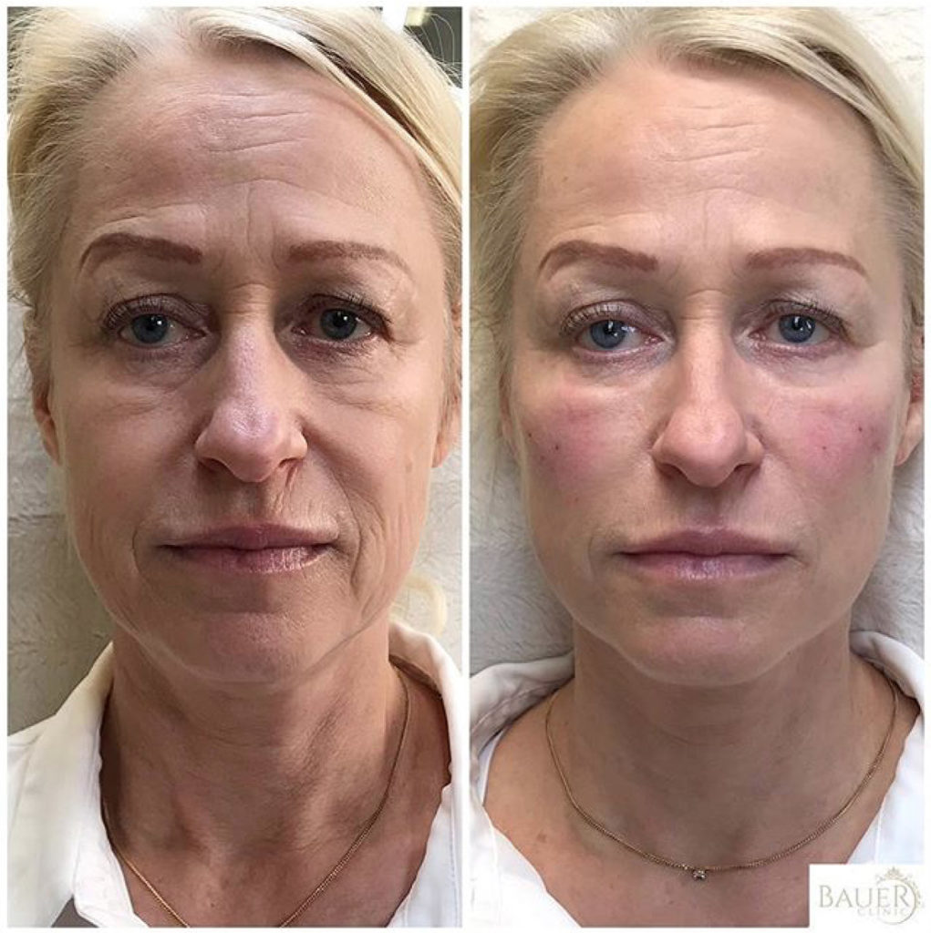Facelift-bauer-clinic-1