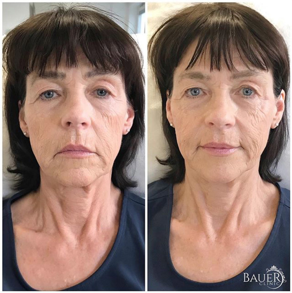 Facelift-bauer-clinic-2